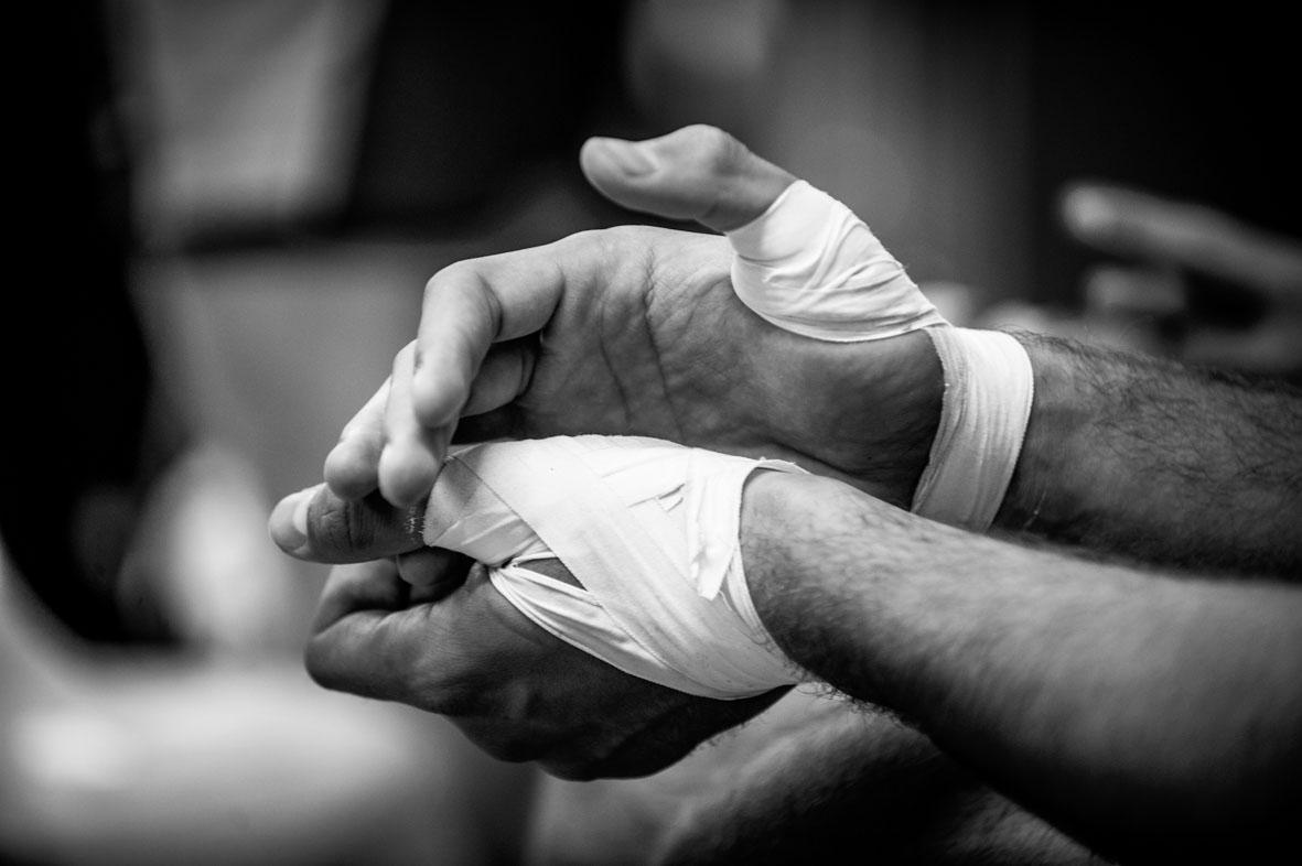 צילום ידיים חבושות סימנים הפקות